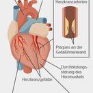 Angina pectoris: Symptome, Warnzeichen, Ursachen, Behandlung