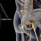 Sciatica Picture Image on MedicineNet.com