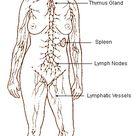 Stage Three Lymphoma Prognosis