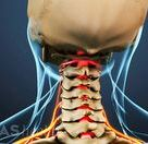 Cervical Radiculopathy from a Herniated Cervical Disc