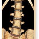 Box Canvas Print. Spinal bone protrusion, 3D CT scan