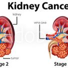 Diagram showing different stages of kidney cancer
