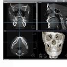 Facial Contouring Surgery Korea 3D Cheekbone, Face Sculpting
