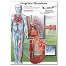 Poster and Print Deep Vein Thrombosis Chart Canvas Painting Wall Pictures for Medical Education Doctors Office Classroom - 50x60cm no frame