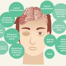 Severe Brain Injury Symptoms