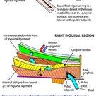 Abdomen   Areas/Organs   Inguinal region   Inguinal canal