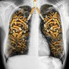 Schleimlösendes Elixier für Raucherlungen - Besser Gesund Leben