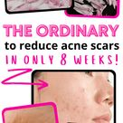 The Ordinary for Acne Scars: 9 Best Products and How to Use Them