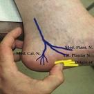 Entrapment of medial calcaneal nerve (MCN)