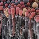 A1 Poster. Choroid plexus secretory cells, SEM