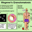 Wegeners granulomatosis.  This was my mother's diagnosis at age 83.  It may have been present & untreated for years before, but she lived with it for an additional two years.