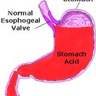 Function of Hydrochloric Acid in Stomach