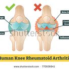 Human Knee Rheumatoid Arthritis Vector Diagram Stock Vector (Royalty Free) 770936941