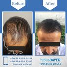 Hair Transplant Turkey Before and After