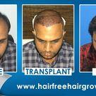 Hair Transplant in Pune    Best Hair Transplant Result.   Best Hair Transplant Clinic.