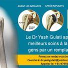 Le Dr Yash Gulati apporte les meilleurs soins à la vie des gens par un remplacement d'épaule
