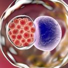 Chlamydia: Symptoms (Men & Women): Symptoms, Treatments & Risk Factors - curefavor
