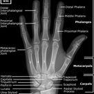 Hand Radiographic Anatomy