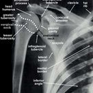 Unpacking a mystery: when shoulder pain may be all (or largely) in the wrist (a t-phase assessment story)