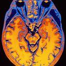 'MRI Brain Scan' Photographic Print - PASIEKA   AllPosters.com