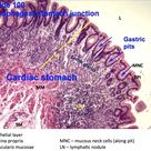 Hsitology - Esophagus - Stomach Junction and Gastric Pits - Histology