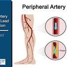 Smoking, an unhealthy diet, high blood pressure and high cholesterol can block the leg arteries