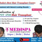 Best Hair Transplant at Medispa