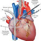 cardiopulmonary bypass and cardioplegia