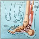 Adult Acquired Flatfoot: An Overview | HSS Foot & Ankle