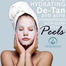 Chemical Peel for Glowing Skin!