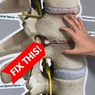 How to Fix a Bulging Disc in Your Lower Back   St. Joseph, MI Chiropractor