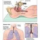 intubation endotracheal tube | Answers from Doctors | HealthTap