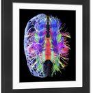 Large Framed Photo. White matter fibres and brain, artwork