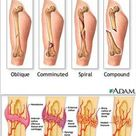 Fracture types and Stages of healing