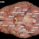 brain ventral view labels