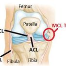 Collateral Ligament Injuries - OrthoInfo - AAOS