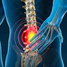 Is Chiropractic Care Effective for Back Pain?