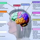 Stroke Education Manual | Barrow Neurological Institute