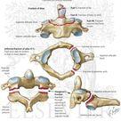 Cervical Fractures