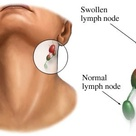 Swollen Lymph Nodes Glands Disease- Treatment with Herbal Remedies