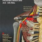 Overcoming Chronic Neck Pain Postural Causes and A Unique Exercise Fix   Posture and Pain