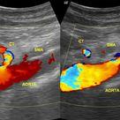 Acute superior mesenteric artery occlusion: on ultrasound | Radiology Case | Radiopaedia.org