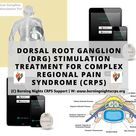Dorsal Root Ganglion DRG Stimulation Treatment For CRPS