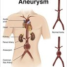 Artist depcition of abdominal aortic aneuryism with labels. 7 inch Photo. Artist depcition of abdominal aortic aneuryism with labels.