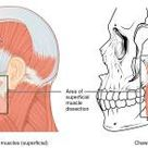 Temporomandibular Joint Disorders And Physical Therapy Treatment