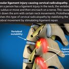 The evidence for non surgical cervical radiculopathy treatments