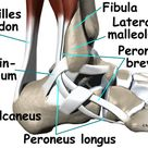 """When an """"ankle sprain"""" is not just an ankle sprain…"""