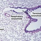 Terminal bronchioles leading to alveolar ducts