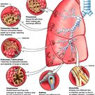Respiration and Health. Common Bronchial and Pulmonary Diseases