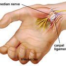Carpal tunnel surgery   Cincinnati, OH Mayfield Brain & Spine